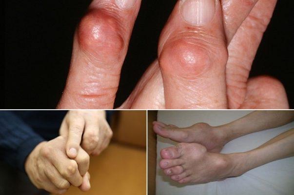 Máy điêu khắc body châm cứu hỗ trợ chữa bệnh gout