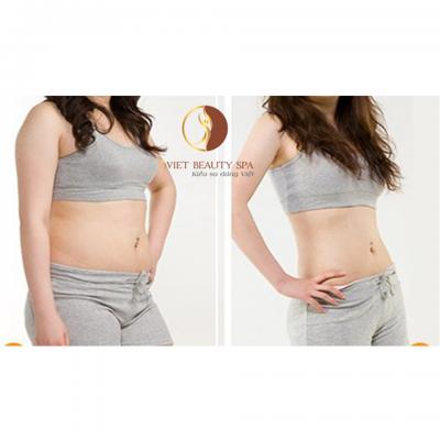 Giảm béo dưỡng sinh – Có ngay vòng eo 56 không cần phẫu thuật